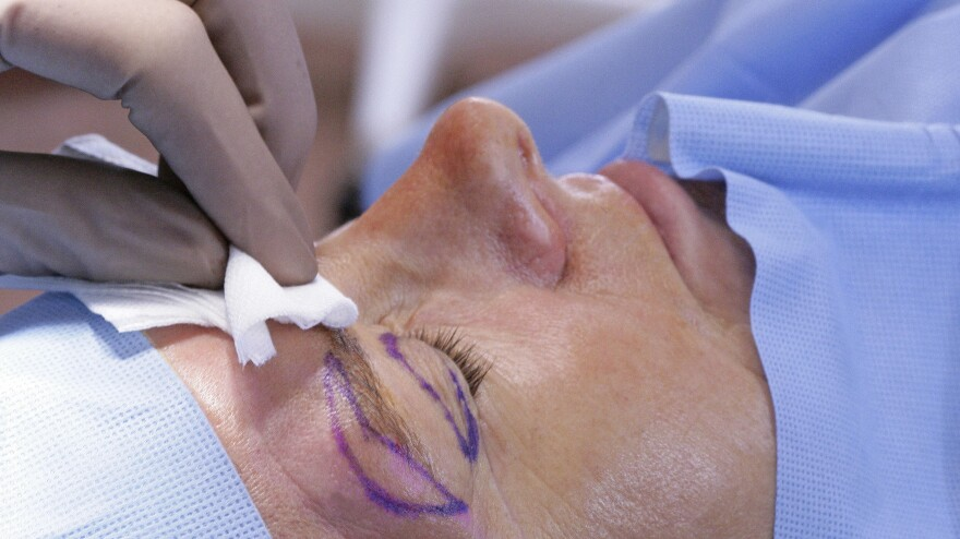 The number of eyelid lifts reimbursed by Medicare more than tripled from 2001 to 2011, according to the Center for Public Integrity. Here, a woman is prepared for the procedure, along with an eyebrow lift.
