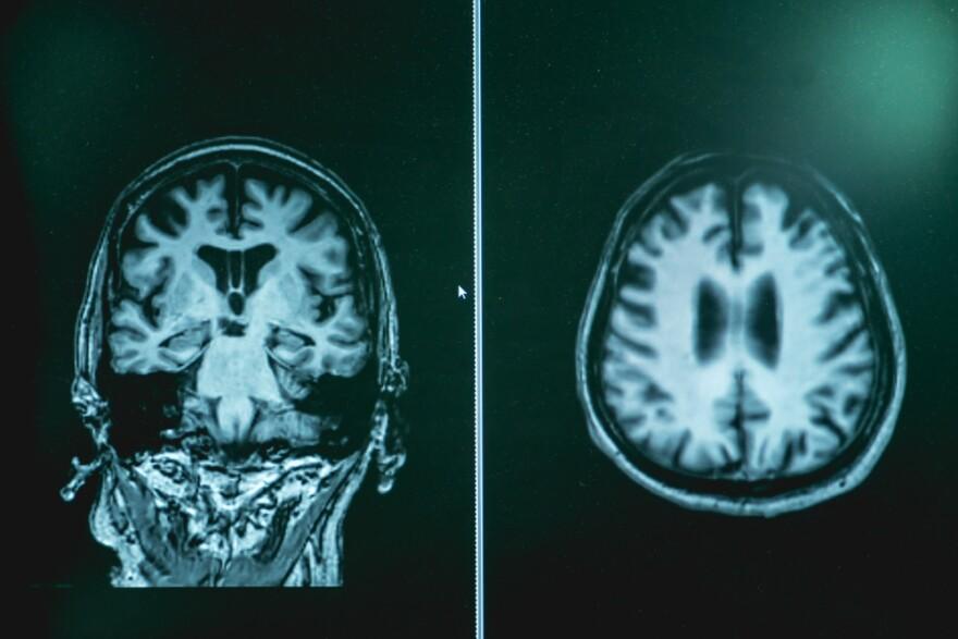 MRI of a brain with Alzheimer's disease