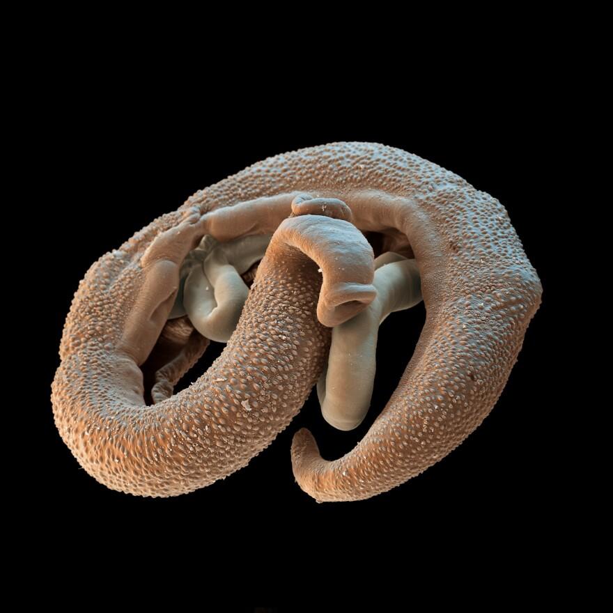 A male and female pair of <em>Schistosoma</em> parasites.