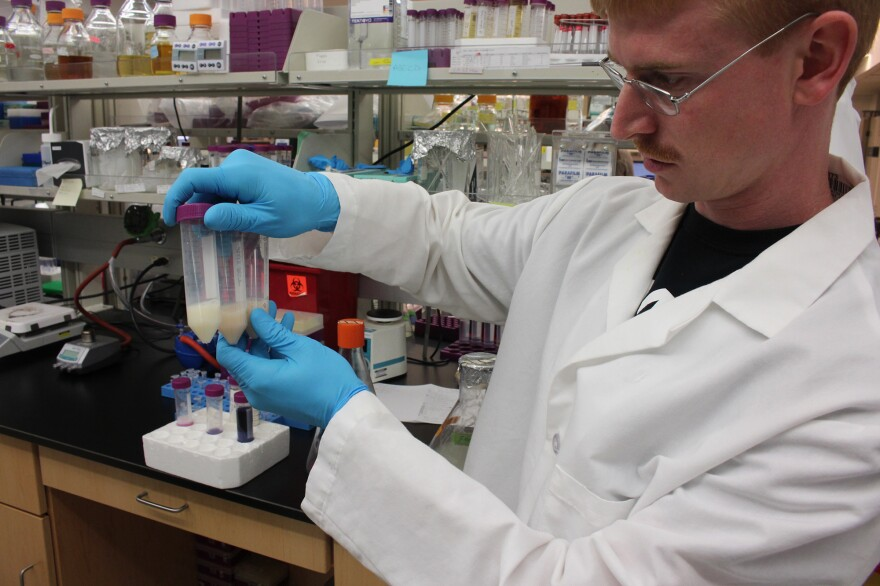 Andrew Jones, a graduate student at Rensselaer Polytechnic Institute, looks at test tubes filled with bacteria that are producing antioxidants.