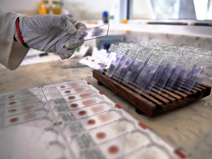 A laboratory technician prepares blood samples from volunteers for viral-genotyping at the government-run Ifakara Health Institute in Bagamoyo, Tanzania.