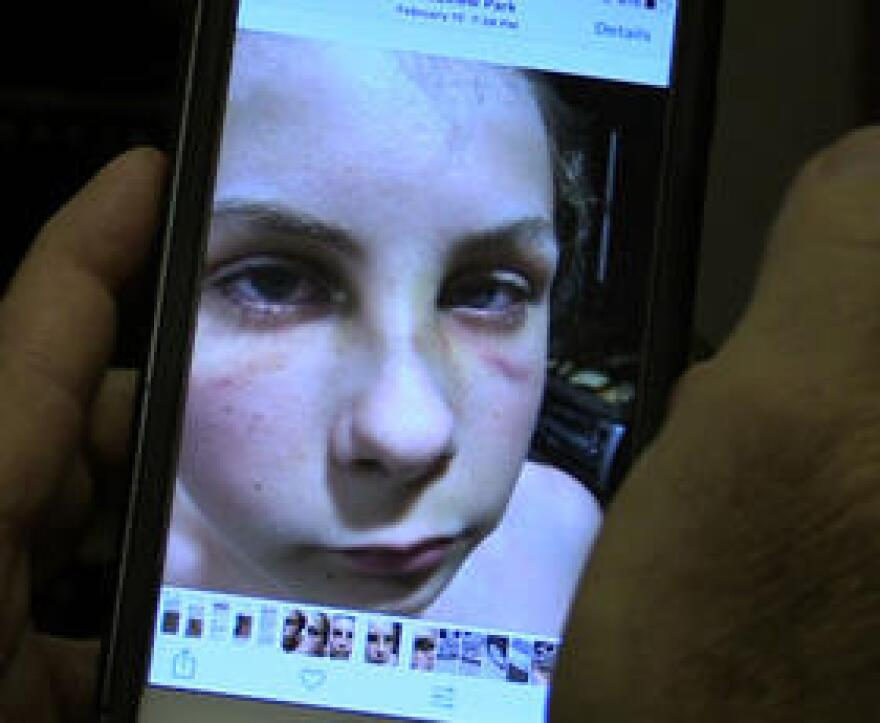 Andrew Ostrovsky, 14, had his nose broken in two places by a DJJ guard who tossed him to the floor and punched him as he lay on his back.