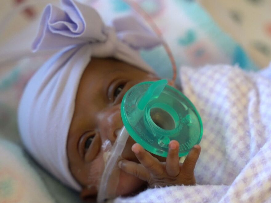 Saybie spent almost five months in a neonatal intensive care unit after being born at about 23 weeks' gestation.