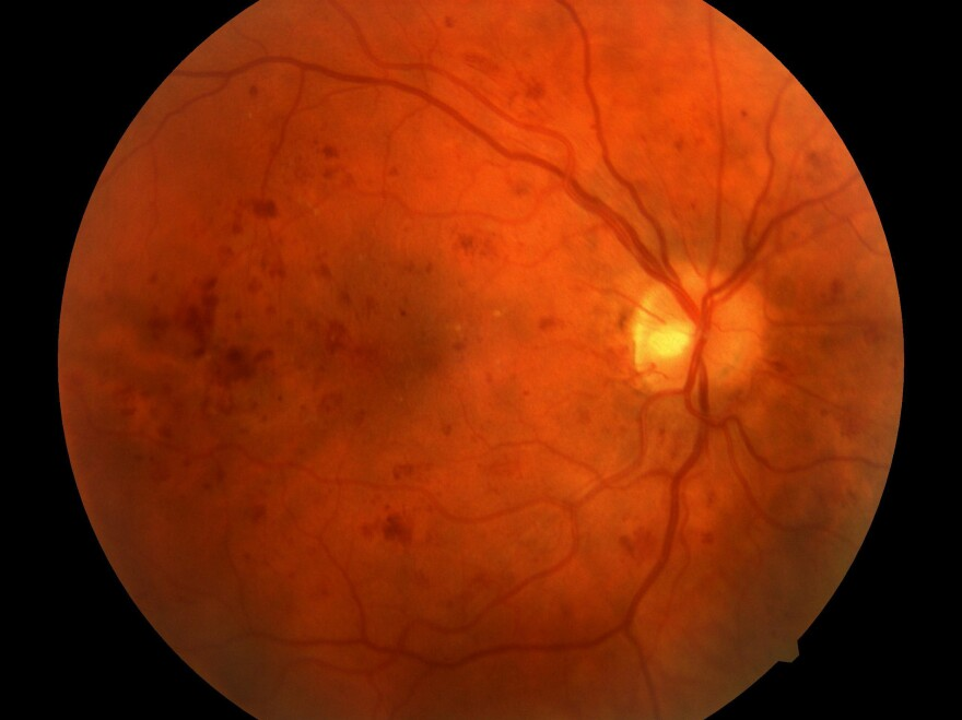 A retinal image shows severe nonproliferative diabetic retinopathy, a vision-threatening form of the disease, characterized by hemorrhages (the darker red spots in the image) across the retina.