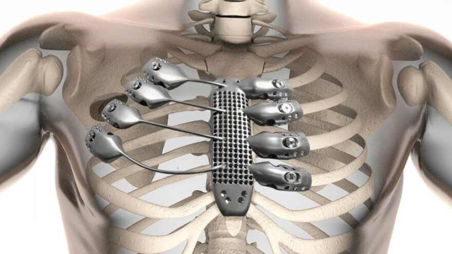 The implant was custom-designed using CT scans of a cancer patient's chest. The man lost his sternum and four ribs during surgery to remove a tumor
