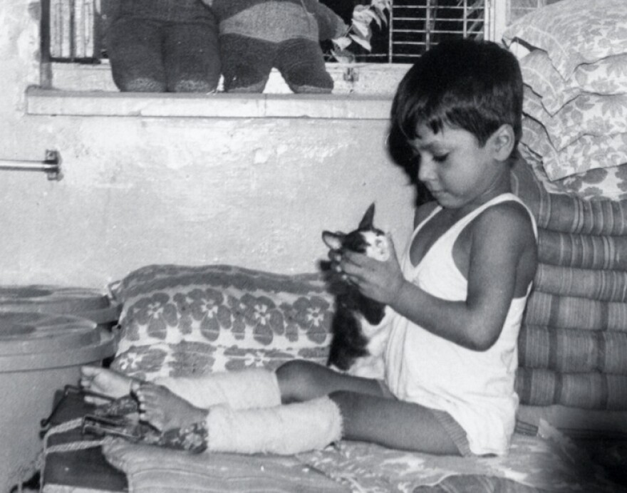 Lewis underwent a half-dozen corrective surgeries after contracting polio at 18 months. His treatment, under the care of Mother Teresa's Missionaries of Charity, included the straightening of his legs with weights strapped to his limbs for six months (pictured above).