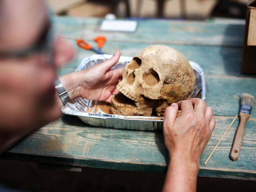Anthropologist Sherry Fox displays a skull discovered at the Ashkelon excavation site, on June 28.