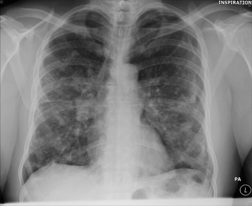 sarcoidosis_nodular_lesions_in_lung_flickr.jpg