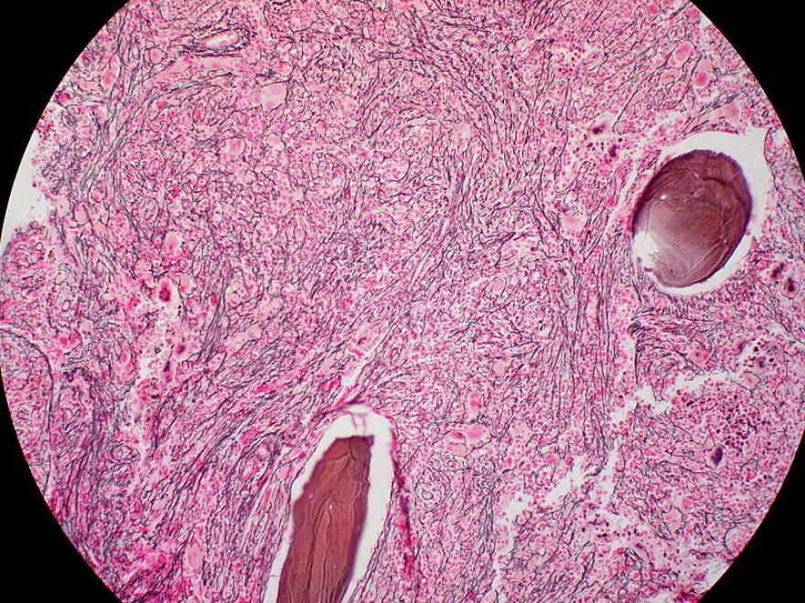 800px-myelofibrosis__reticulin_stain__6032644716_.jpg