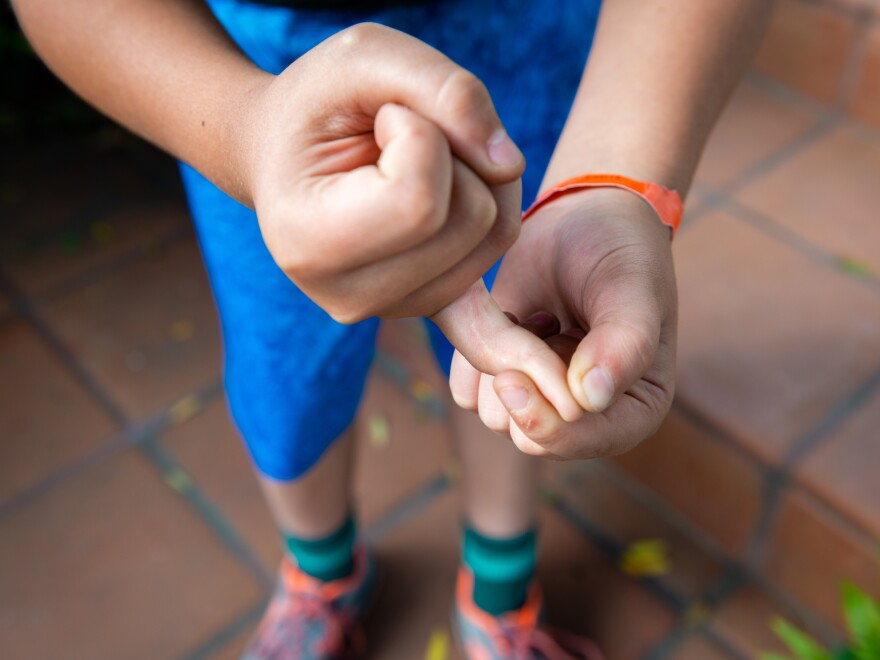 Theo Lopez, 11, reveals a scar on his right pinkie from an injury he sustained while carving a Halloween pumpkin at age 9. He required complex surgery and numerous rounds of doctor-ordered occupational therapy.