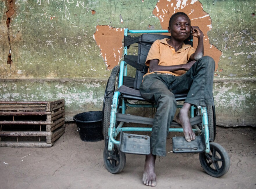 Etienne Tshiluanjim has konzo and survives on the brink of starvation. He and his family survive on the only food their neighbors donate to them — bitter cassava.