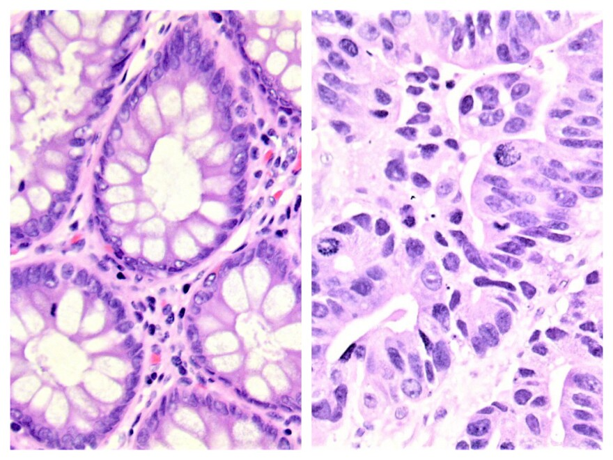 Images of colon tissue. On the left, healthy colon tissue and on the right, cancerous.