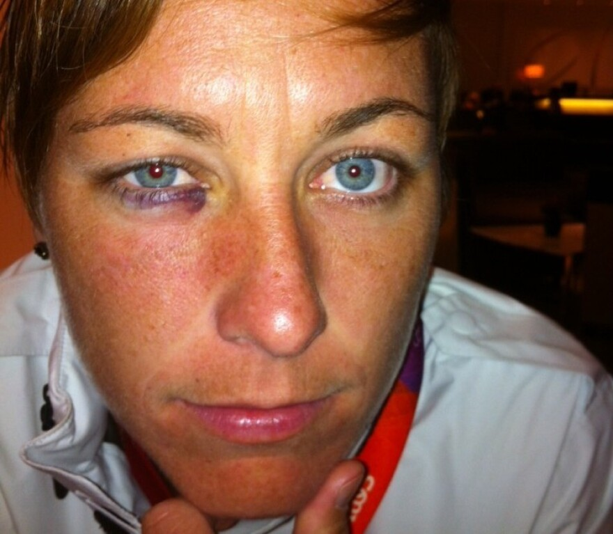 Abby Wambach after a game with Colombia.