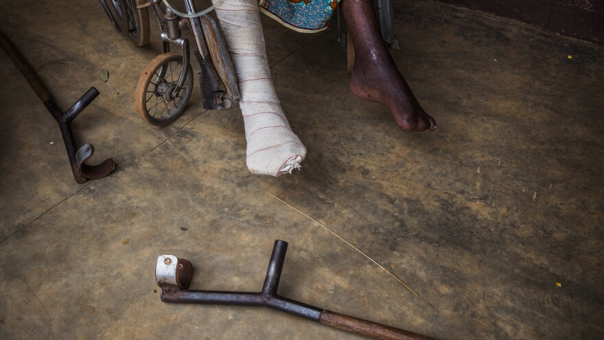 A man at a hospital in Bombuaka, Togo.