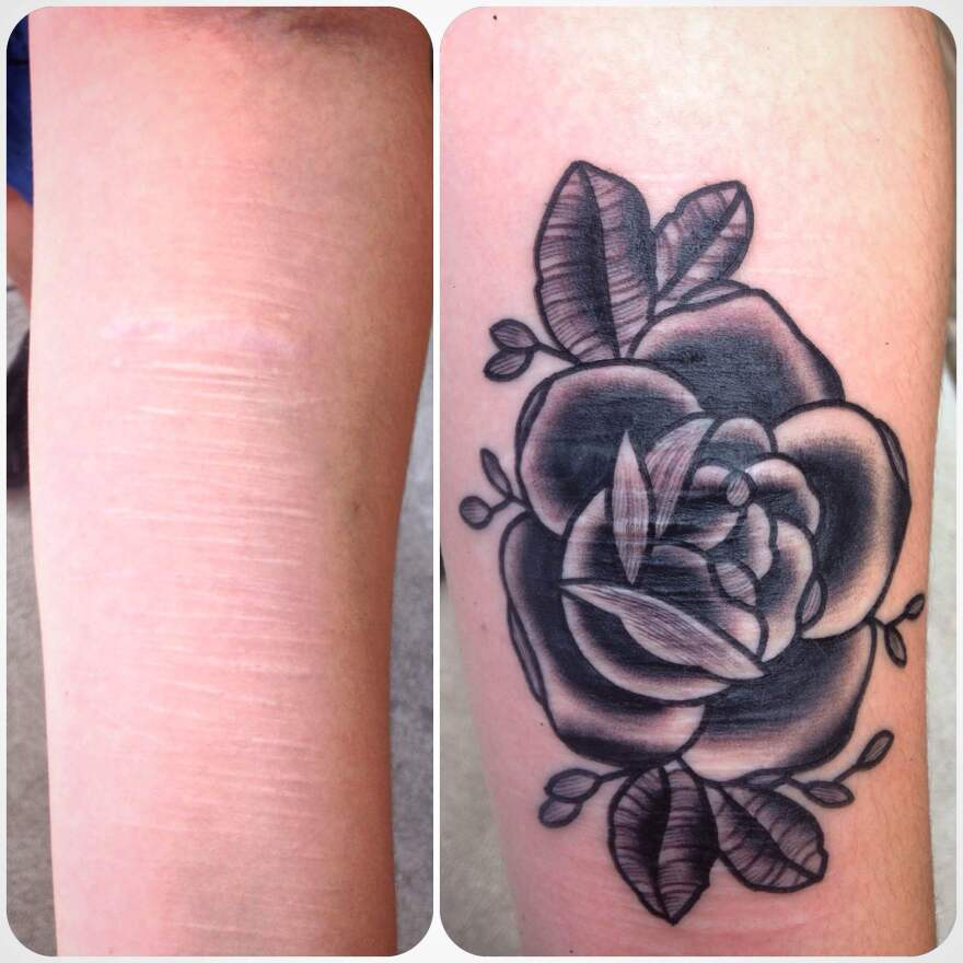 Maddie Keating shows her arm before and after her tattoo by Brian Finn which covered her scars.