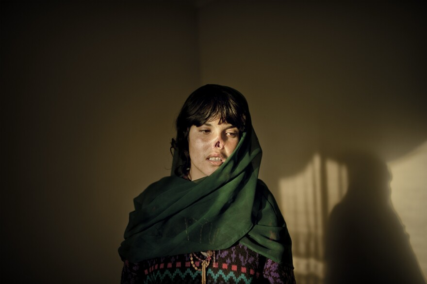 Bibi Aisha, whose husband cut off her nose because she had left their home to seek help. This photo was on the cover of <em>Time </em>magazine. November 2009