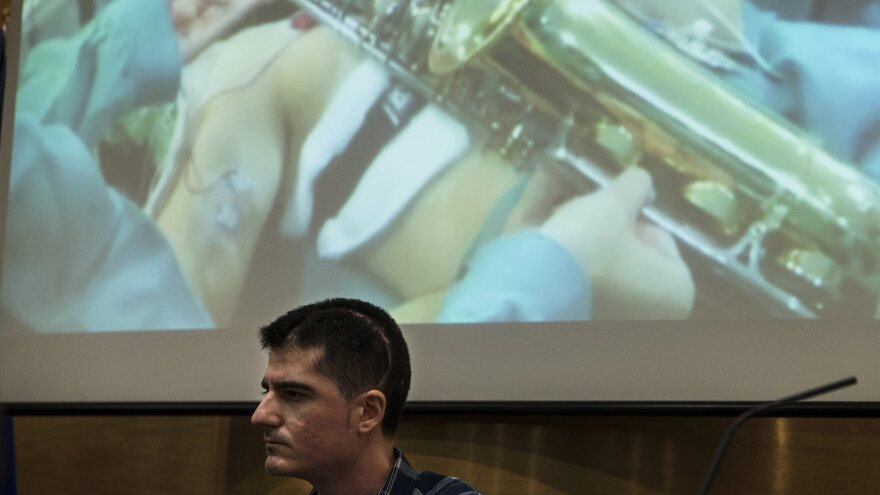 Carlos Aguilera recently discussed how he played the saxophone during surgery to remove a brain tumor at Regional Hospital of Malaga, in Andalusia, Spain.