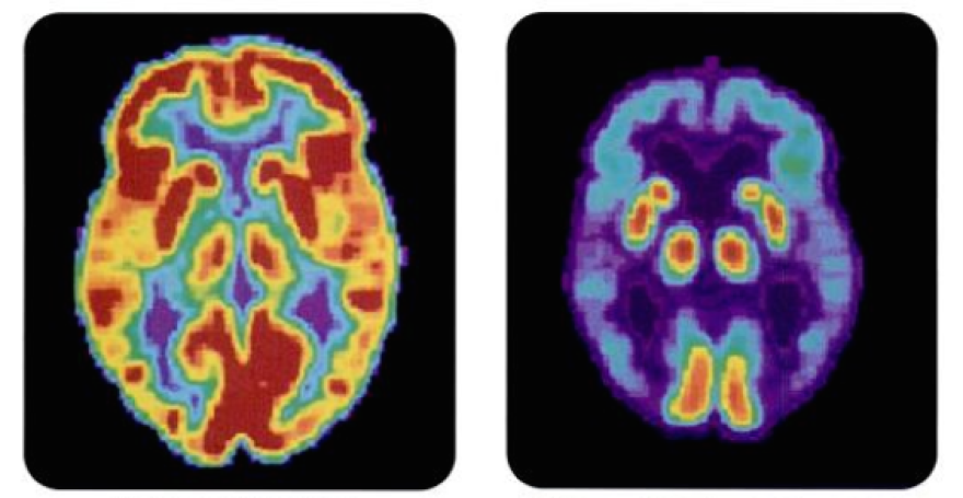 PET scan of a normal brain, left, and an Alzheimer's Disease brain, right.