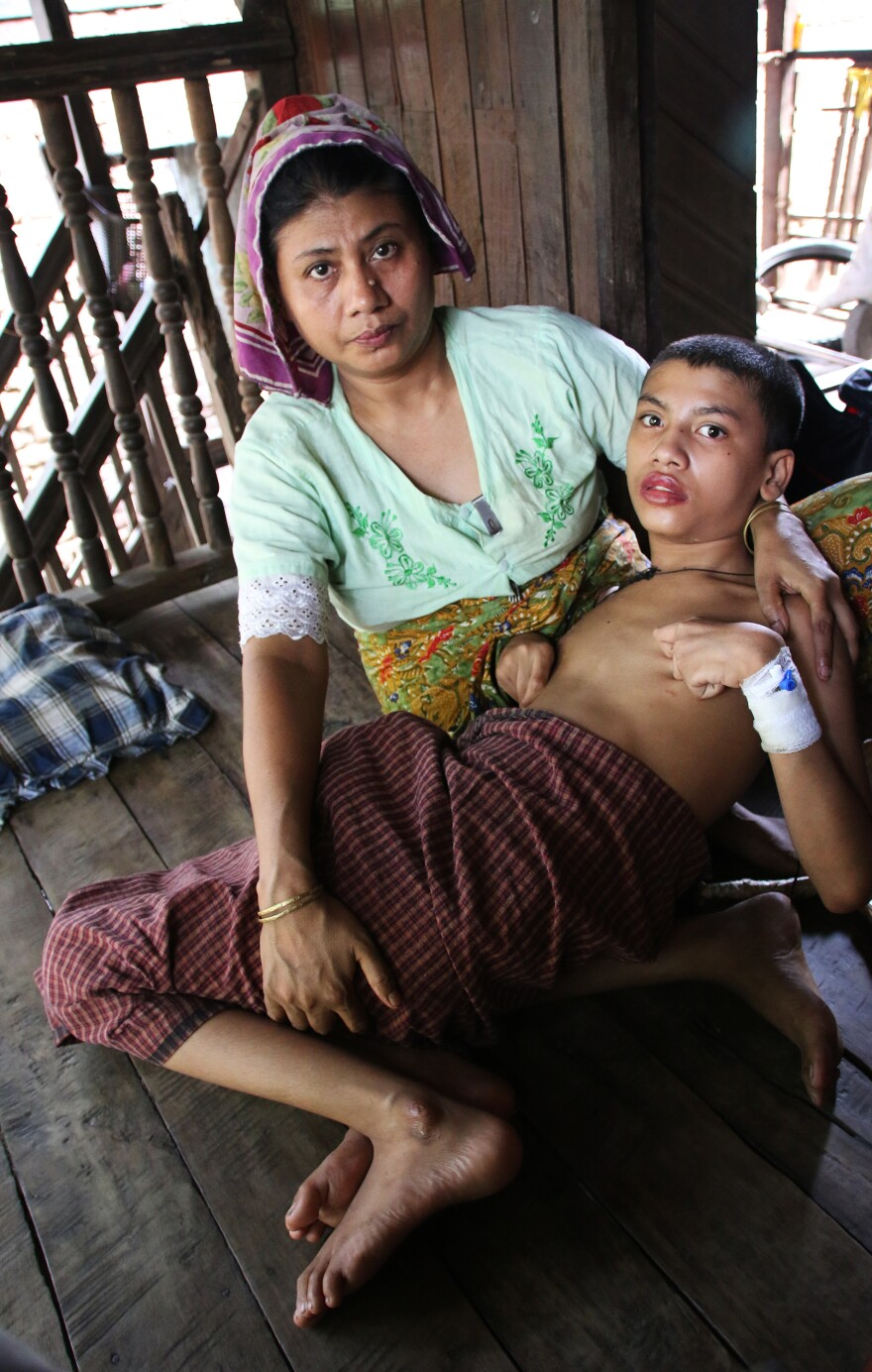 Zomir Hussein, 13, suffers from the effects of an accidental overdose of tuberculosis medicine. Because he is Rohingya, he is unable to go into Sittwe to the only hospital that can treat him. Most Rohingya are confined to camps for internally displaced persons, where there are few doctors.