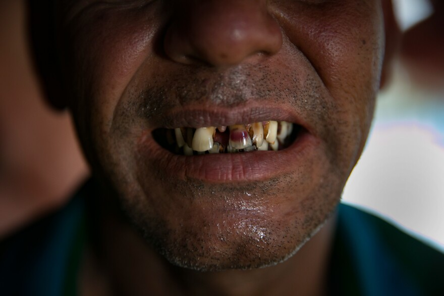 Sona Meah shows how the Myanmar military damaged his teeth.