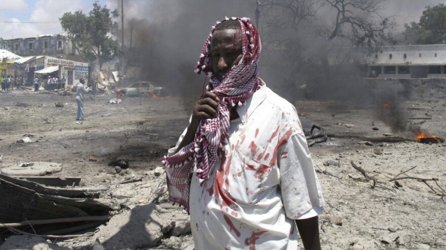 <p>A wounded man stands at the scene of the explosion in Mogadishu, Somalia, earlier today. </p>