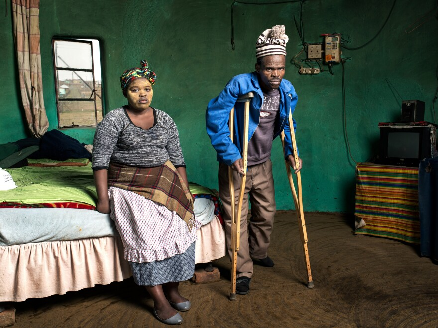 "Patrick Sitwayi, 57, lives in Upper Mcambalala and has silicosis from working in the gold mines for 22 years. Photographer Thom Pierce has been covering the <a href=""http://thompierce.com/tpog"">miners</a>."