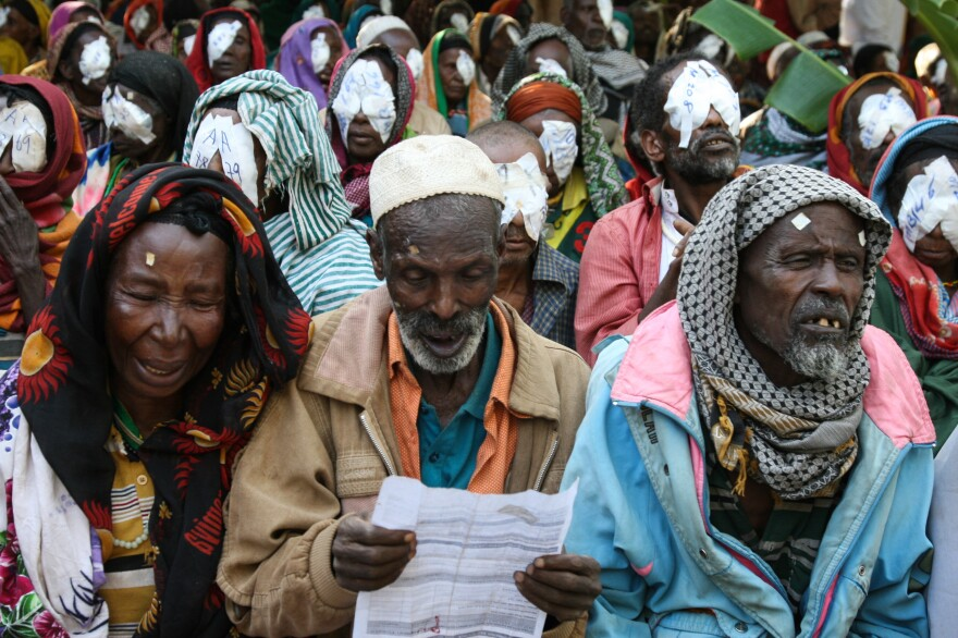 After cataract surgery to restore his sight, this man can now read his medical chart. Other patients behind him are about to have the bandages removed from their eyes.