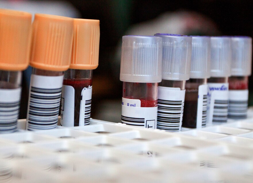 By combining results of common blood tests, the researchers were able to come up with a way to predict risk of diabetes and other chronic diseases.