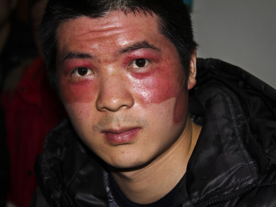 Worker He Wenwen's face was disfigured by a fireball during the December explosion at a plant that produced aluminum backings for Apple's iPad 2.