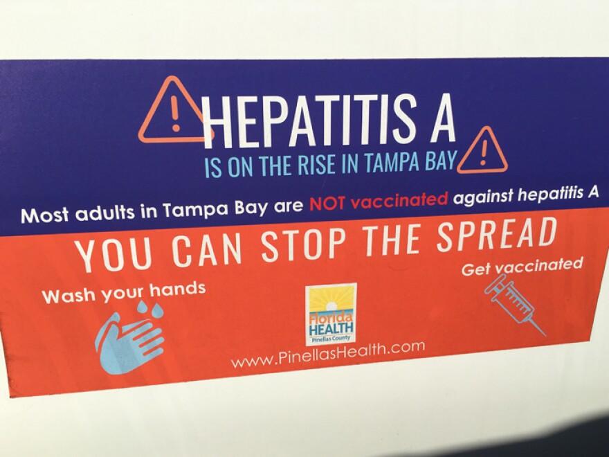 Hepatitis A sign