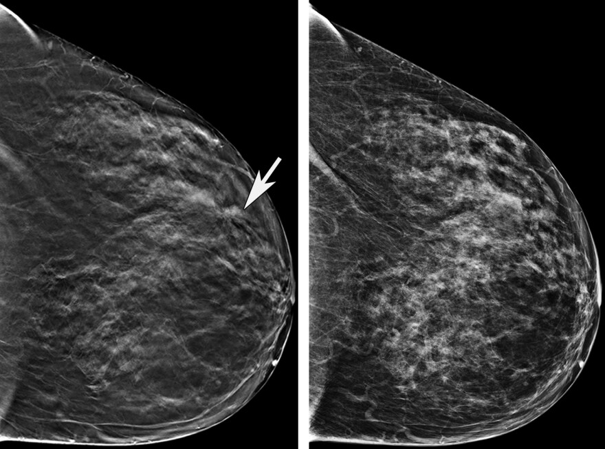 The mammogram image on the left is a 3D image showing an abnormality where the arrow is pointing. In the 2D image on the right, the abnormality is less clear. The patient underwent biopsy, which revealed breast cancer.