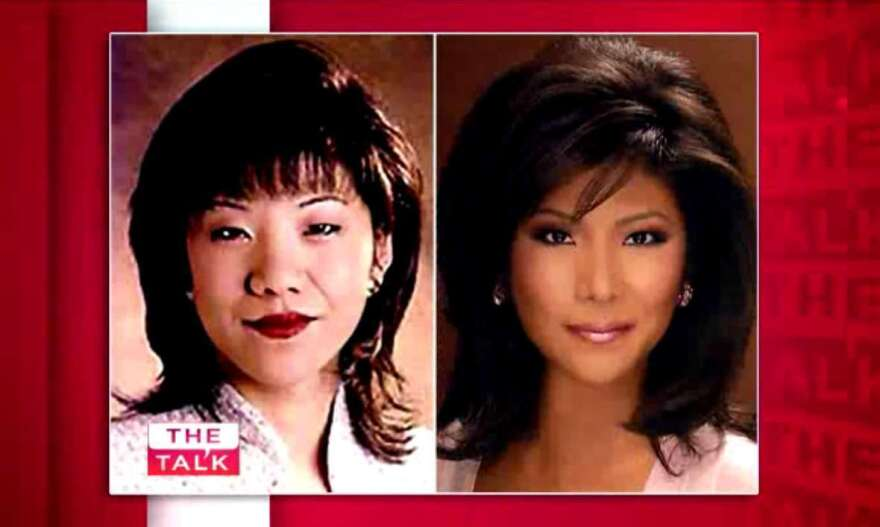 """Julie Chen had surgery to give her """"double eyelids"""" after a news director described her """"Asian eyes"""" as """"small"""" and """"heavy"""" and told her — among other choice comments — that they made her look """"disinterested"""" and """"bored"""" during on-air interviews."""