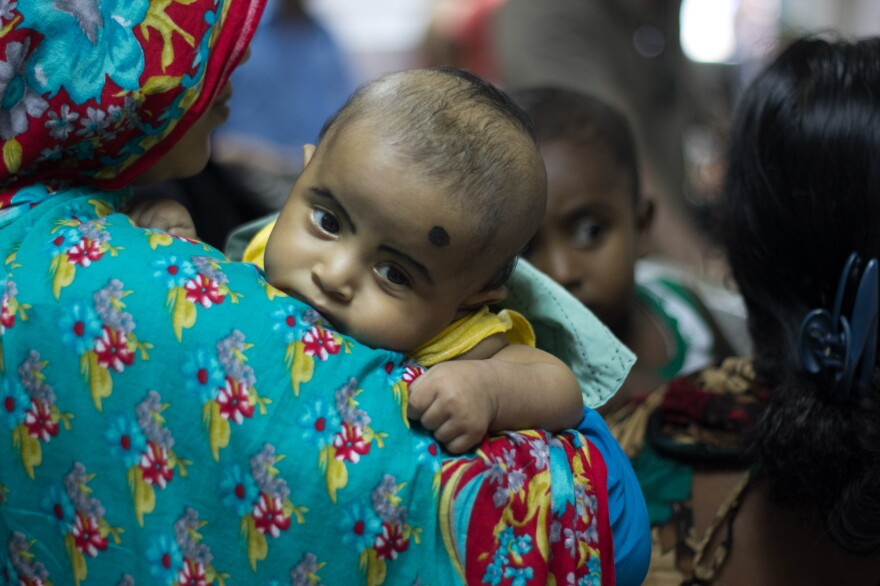 """A patient is pictured at a camp for diarrhea patients in Dhaka, Bangladesh. Among the nominations for untold story last year: the need for vaccines to prevent """"severe, deadly diarrhea"""" in this part of the world."""