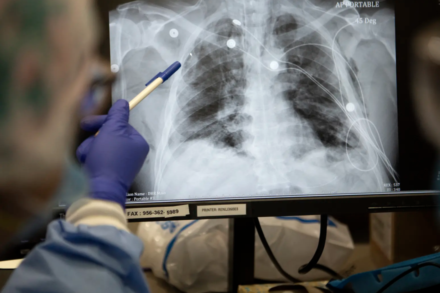 Nurses look over the X-rays of COVID-19 patients at Doctors Hospital at Renaissance Health System in Edinburgh.
