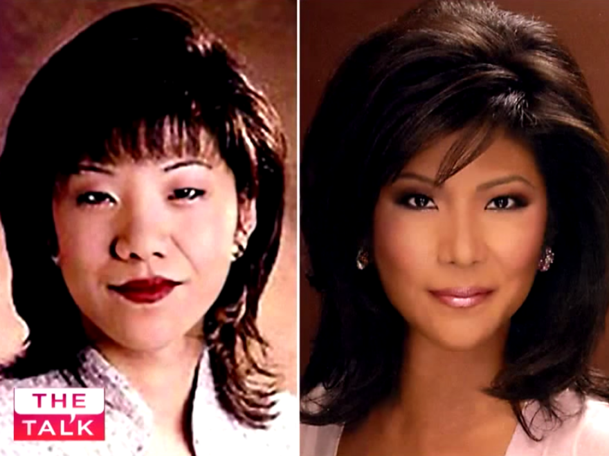 This is the image Julie Chen showed on <em>The Talk</em> when she revealed she'd had double eyelid surgery.