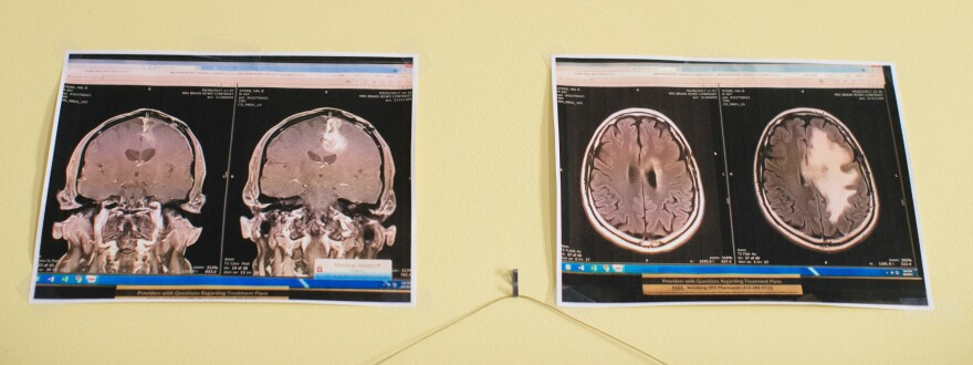 The Sterns hang up images of Ben's brain tumor, shown on the right (white) in each image, and also five weeks after treatment.