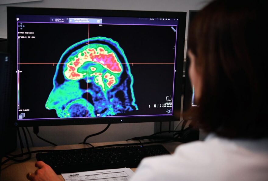 A picture of a human brain taken by a positron emission tomography scanner, also called PET scan, is  displayed at the Regional and University Hospital Center of Brest