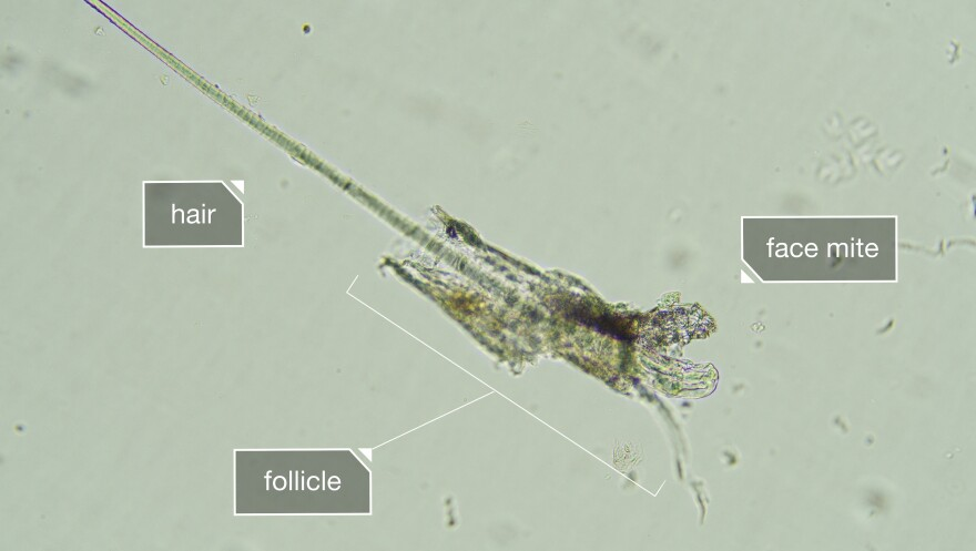 Since face mites live inside your pores, you can't wash them off. But for a majority of people, they're harmless.