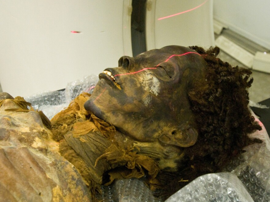 The mummy Maiherpri undergoes CT scanning. Study results call into question the perception of atherosclerosis as a modern disease.