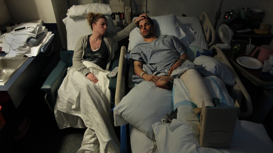 Jen Regan strokes the head of her fiancée, Marc Fucarile, as he sleeps in his hospital bed at Massachusetts General Hospital. Fucarile was injured in the bombings at the Boston Marathon, and had to have his right leg amputated.