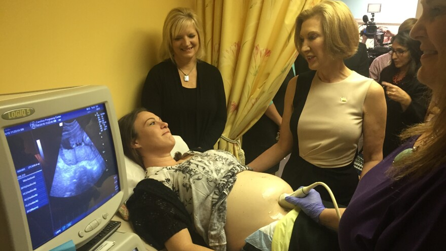 Presidential candidate Carly Fiorina and reporters watch as 31-year-old Lacey Thomas gets an ultrasound.
