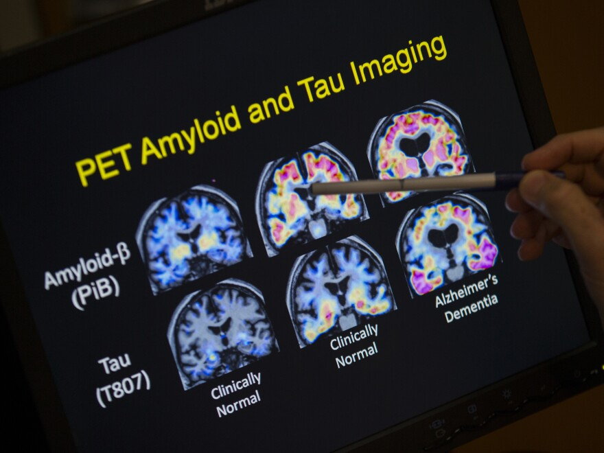 PET scan results that are part of a separate study on Alzheimer's disease at Georgetown University Hospital are seen in May.