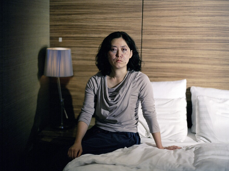Photographer Ji Yeo took portraits of women in South Korea recovering from plastic surgeries.
