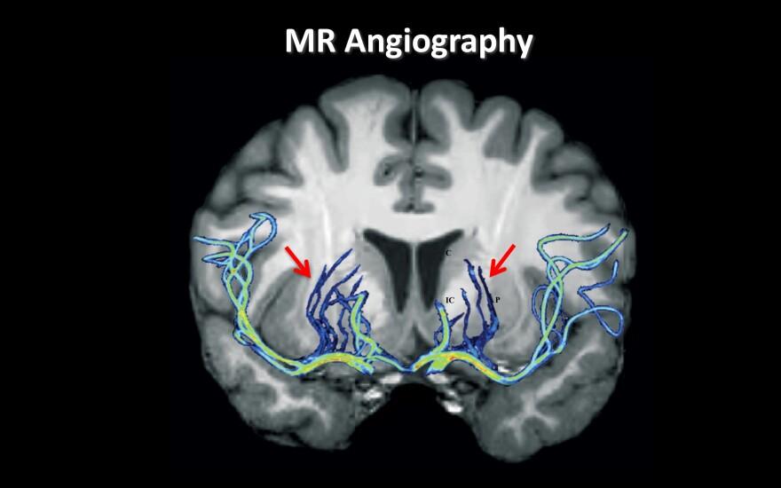 AngioFig.jpeg