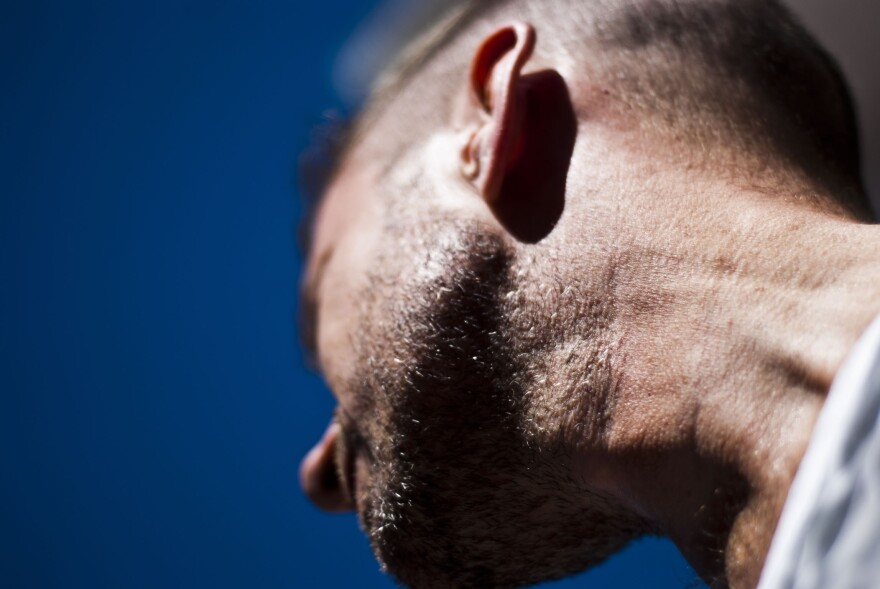 Rates of head and neck melanoma among young people increased by more than 50% from 1995 to 2014, according to new research from St. Louis University.