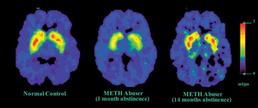 https://www.drugabuse.gov/publications/drugs-brains-behavior-science-addiction/treatment-recoveryd