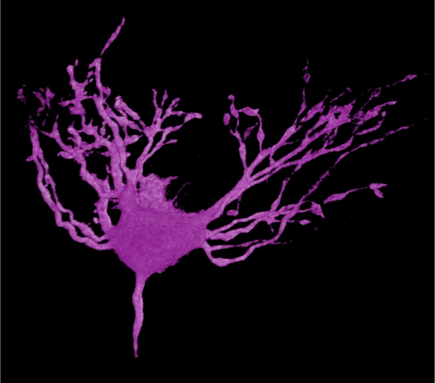 A 3-D reconstruction of a healthy auditory neuron from a chick.