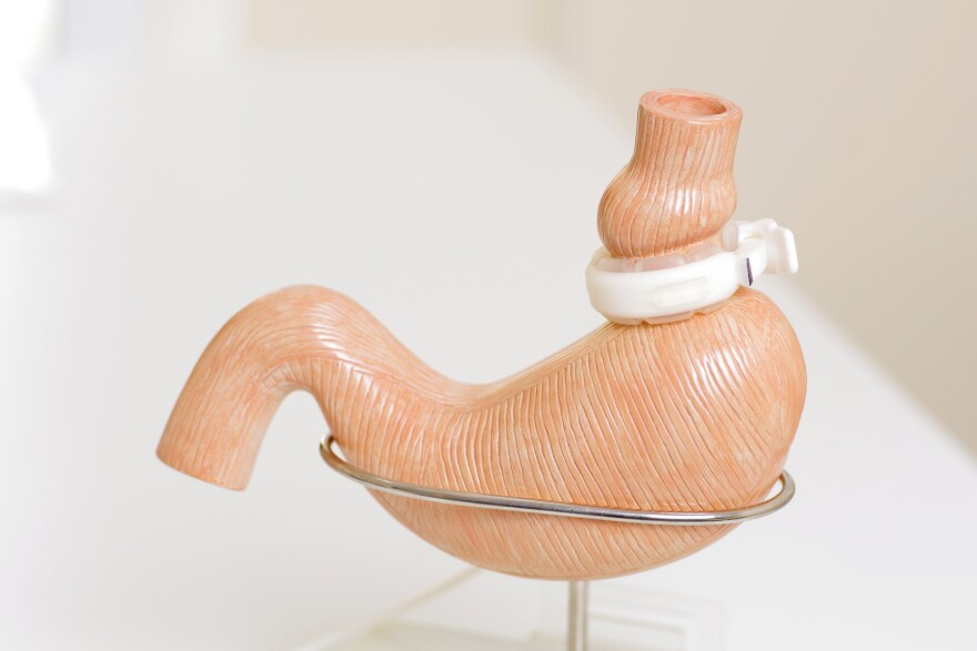 A lap band displayed on a model of a human stomach. It creates a small pouch at the top of the stomach that makes people feel full more quickly.