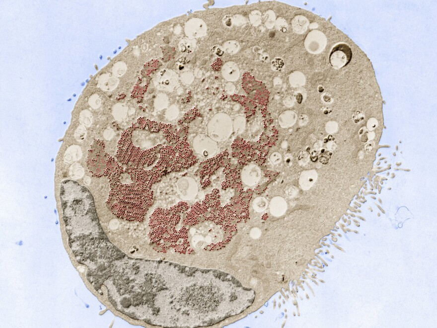 Transmission electron micrograph of a cell infected with reovirus (red). The virus is very common and not considered dangerous. Scientists now think it may have a role to play in triggering celiac disease.