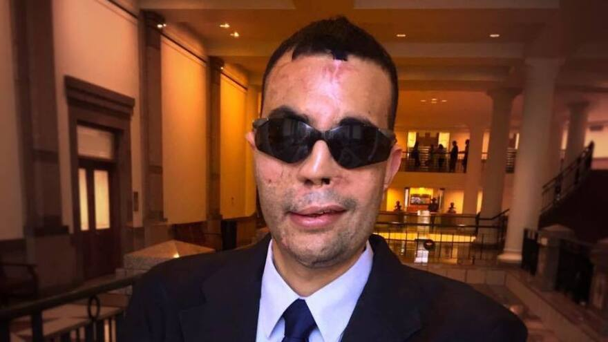 Qusay Hussein, 29, survived a suicide bombing in Iraq in 2006. He lost his vision, nose and cheek before moving to the United States. He graduated from a community college in Texas on Thursday and aspires to be a psychologist.